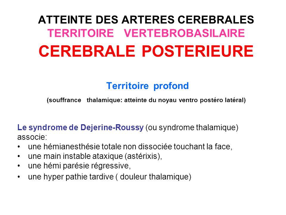 ATTEINTE DES ARTERES CEREBRALES TERRITOIRE VERTEBROBASILAIRE CEREBRALE POSTERIEURE Territoire profond Le syndrome du carrefour hypothalamique : Peut associer : un hémi syndrome cérébelleux, une hémiparésie, une hémianesthésie, des mouvements involontaires (hémi-ballismes)