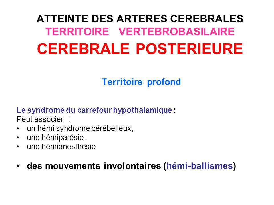 ATTEINTE DES ARTERES CEREBRALES TERRITOIRE VERTEBROBASILAIRE ARTERES CEREBELLEUSES Les infarctus cérébelleux : latteinte isolée est rare, elle est souvent associée Le tableau dun infarctus cérébelleux associe: des vertiges, une dysarthrie, une ataxie cérébelleuse, un nystagmus.