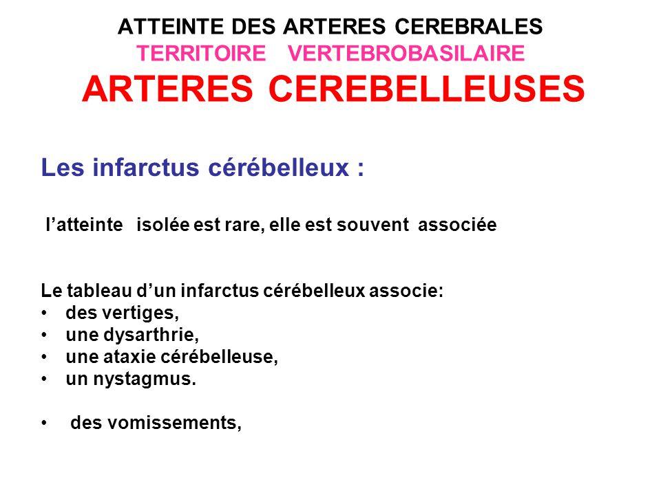 ATTEINTE DES ARTERES CEREBRALES TERRITOIRE VERTEBROBASILAIRE ARTERES CEREBELLEUSES La forme bénigne les signes cérébelleux peuvent être mineurs, parfois précédés de vertiges et de céphalées de siège postérieure