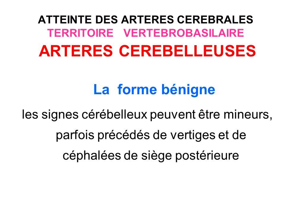 ATTEINTE DES ARTERES CEREBRALES TERRITOIRE VERTEBROBASILAIRE ARTERES CEREBELLEUSES La forme grave Les formes graves oedémateuses sont génératrices dhypertension intracrânienne aiguë menaçante qui peut mettre en jeu le pronostic vital par : la compression du tronc cérébral (engagement des amygdales cérébelleuses) L hydrocéphalie aiguë par obstruction compression du 4ème ventricule.