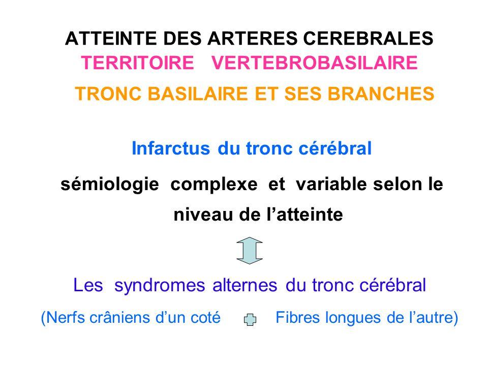 Infarctus du tronc cérébral Le ramollissement bulbaire : le syndrome de Wallenberg : est le plus fréquent et le mieux connu.