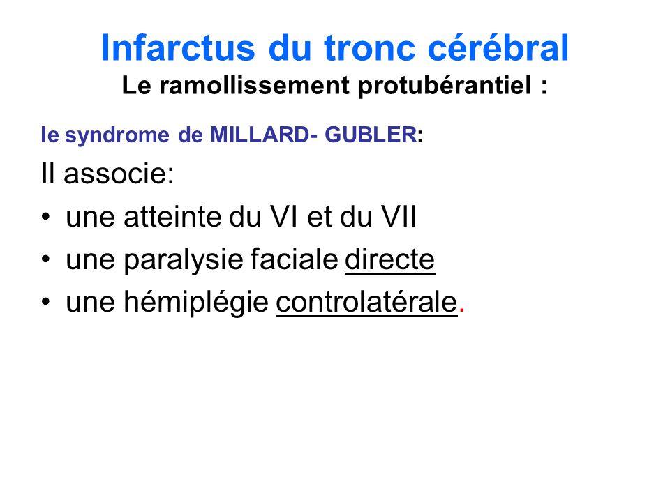 Infarctus du tronc cérébral Le ramollissement protubérantiel : Linfarctus protubérantiel bilatéral réalise un « locked in syndrome »qui associe : quadriplégie, diplégie faciale, aphémie, paralysie labio – glosso - pharyngée, paralysie de la latéralité du regard des deux côtés.