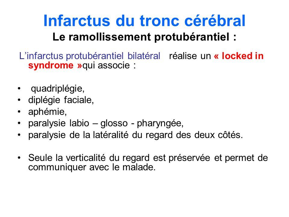Infarctus du tronc cérébral Le ramollissement pédonculaire le syndrome de WEBER associe: une paralysie du III du côté de la lésion une hémiplégie controlatérale.