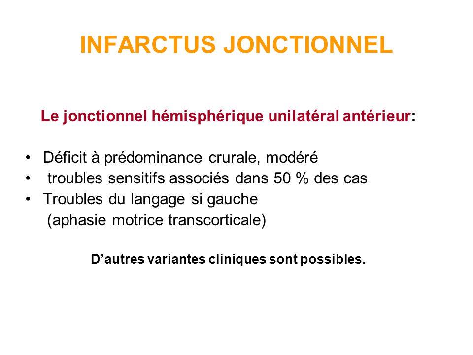 INFARCTUS JONCTIONNEL Le jonctionnel hémisphérique unilatéral postérieur: Latteinte du champ visuel est constante (HLH respectant la vision maculaire) Atteinte du langage si gauche (aphasie transcorticale sensorielle) Rarement déficit moteur ou sensitif.