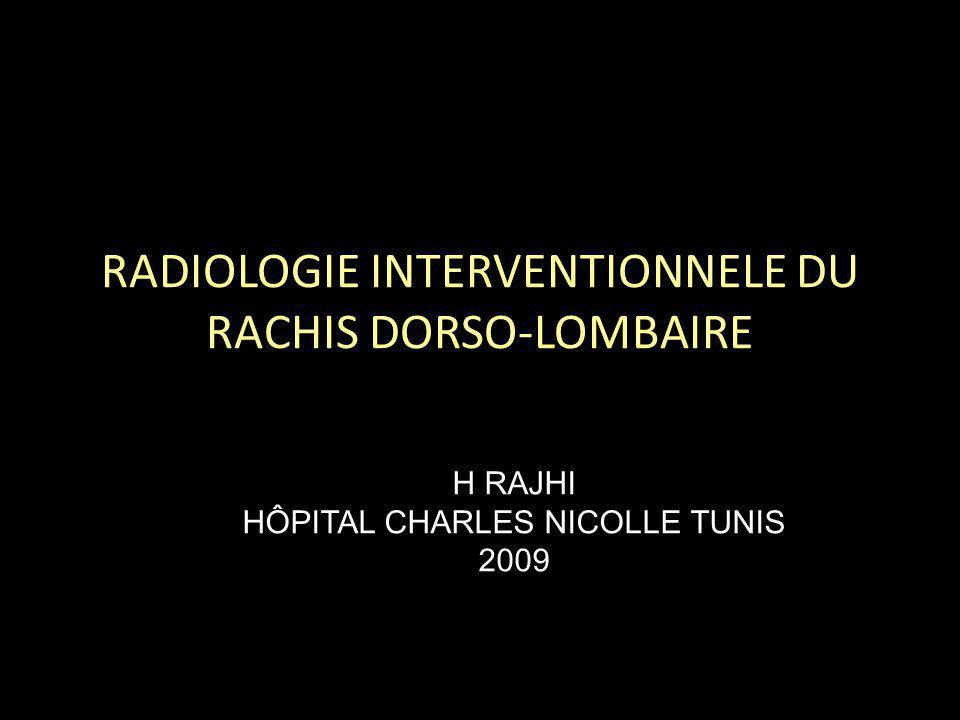 PLAN Biopsie vertébrale et disco-vertébrale – Indications – Matériel utilisé – Techniques par abord postéro latéral et par voie transpédiculaire.