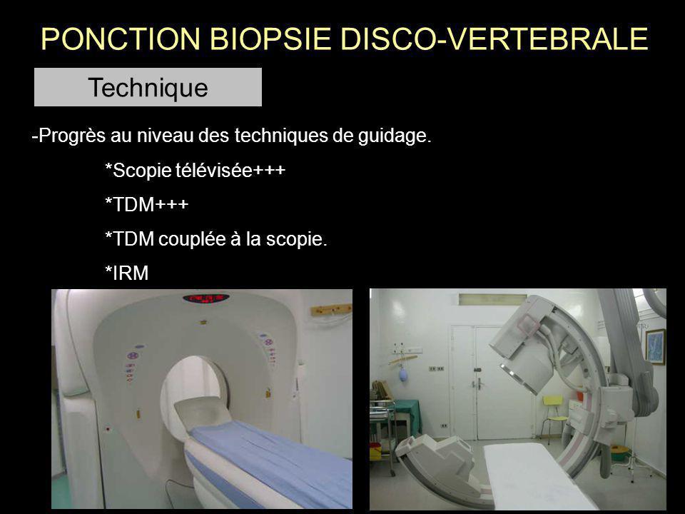 Neuroleptanalgésie Voie extra pédiculaire ou transpédiculaire.
