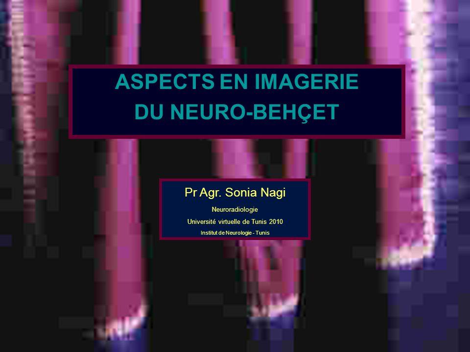 5 à 7 % neuro-Behçet inaugural dg difficile Messages à retenir Rôle de lIRM.