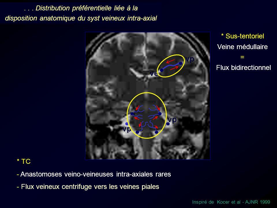 vp ve... Distribution préférentielle liée à la disposition anatomique du syst veineux intra-axial Inspiré de Kocer et al - AJNR 1999 * Sus-tentoriel V