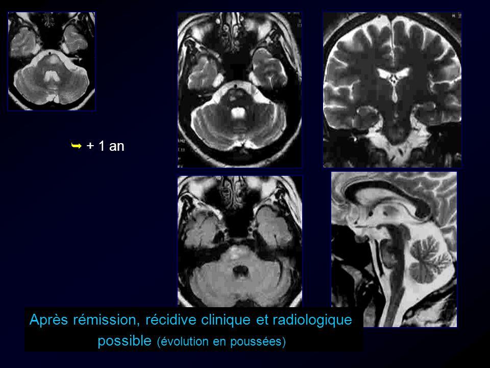 Après rémission, récidive clinique et radiologique possible (évolution en poussées) + 1 an