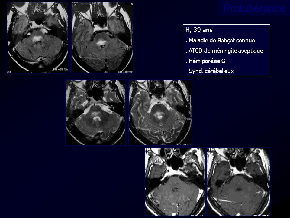 H, 39 ans. Maladie de Behçet connue. ATCD de méningite aseptique. Hémiparésie G Synd. cérébelleux Protubérance