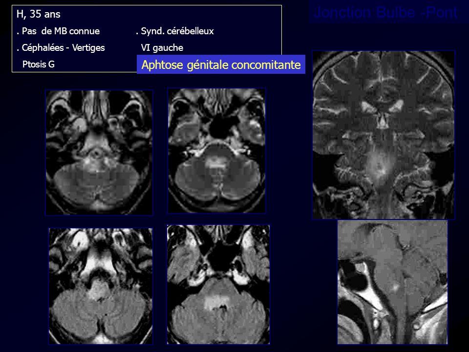 Jonction Bulbe -Pont H, 35 ans. Pas de MB connue. Synd. cérébelleux. Céphalées - Vertiges VI gauche Ptosis G Aphtose génitale concomitante