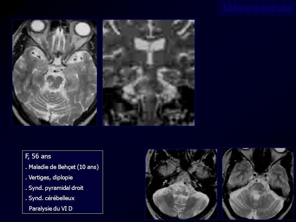 F, 56 ans. Maladie de Behçet (10 ans). Vertiges, diplopie. Synd. pyramidal droit. Synd. cérébelleux Paralysie du VI D Mésencéphale