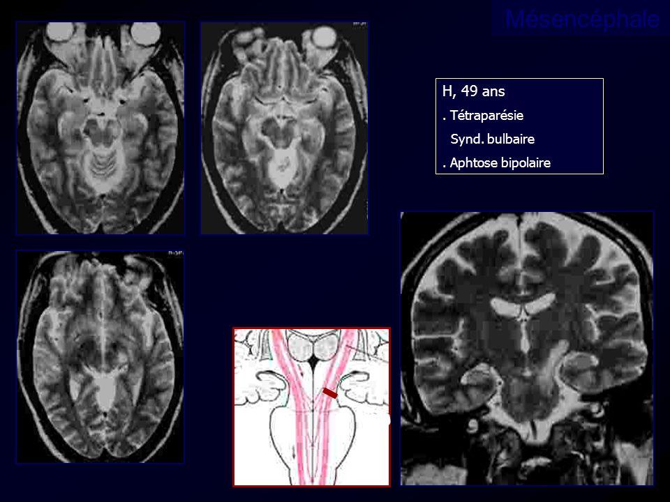 Mésencéphale H, 49 ans. Tétraparésie Synd. bulbaire. Aphtose bipolaire