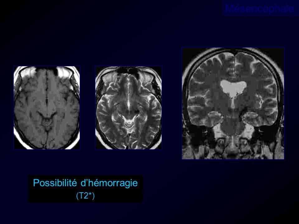 Possibilité dhémorragie (T2*) Mésencéphale