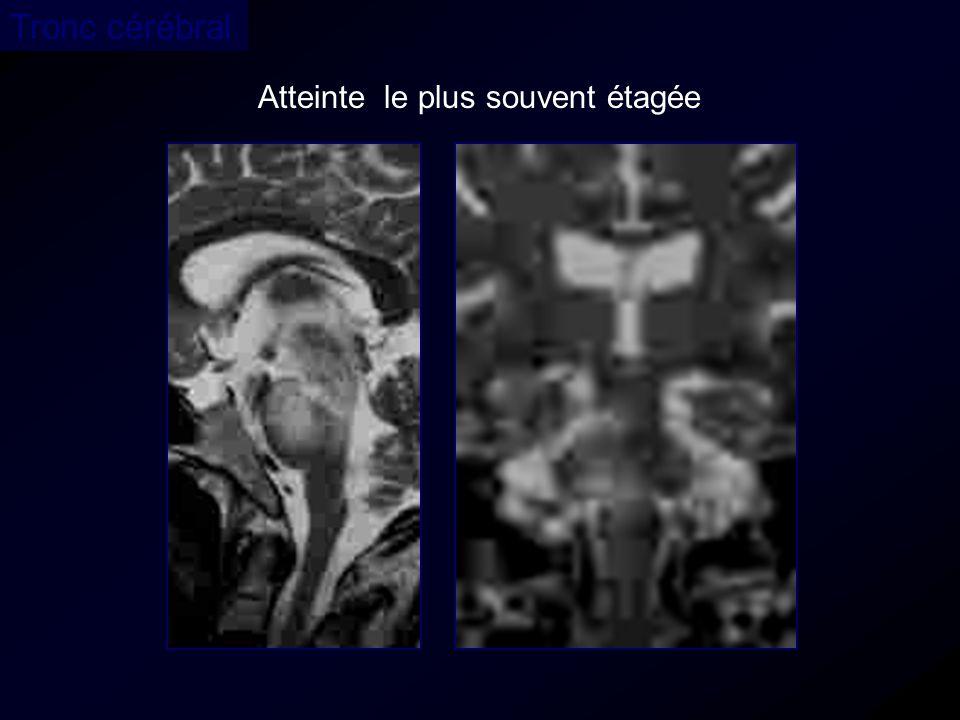 Atteinte le plus souvent étagée Tronc cérébral