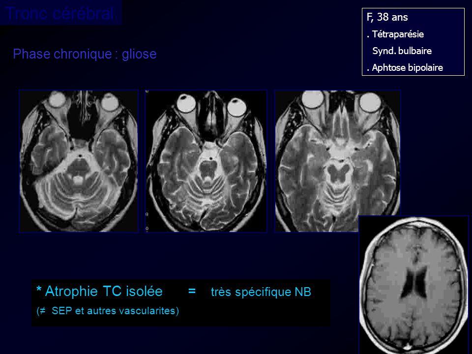 Phase chronique : gliose F, 38 ans. Tétraparésie Synd. bulbaire. Aphtose bipolaire * Atrophie TC isolée = très spécifique NB ( SEP et autres vasculari