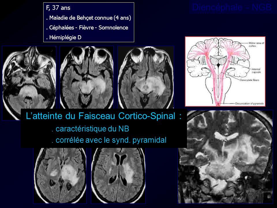 F, 37 ans. Maladie de Behçet connue (4 ans). Céphalées - Fièvre - Somnolence. Hémiplégie D Latteinte du Faisceau Cortico-Spinal :. caractéristique du