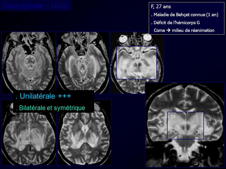 . Unilatérale +++. Bilatérale et symétrique Diencéphale - NGB F, 27 ans. Maladie de Behçet connue (1 an). Déficit de lhémicorps G Coma milieu de réani