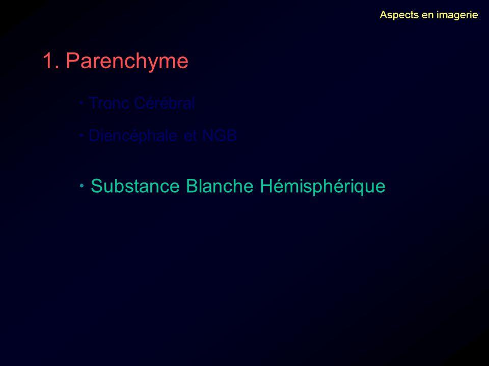 Aspects en imagerie 1. Parenchyme Tronc Cérébral Diencéphale et NGB Substance Blanche Hémisphérique