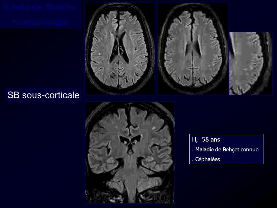 Substance Blanche Hémisphérique SB sous-corticale H, 58 ans. Maladie de Behçet connue. Céphalées