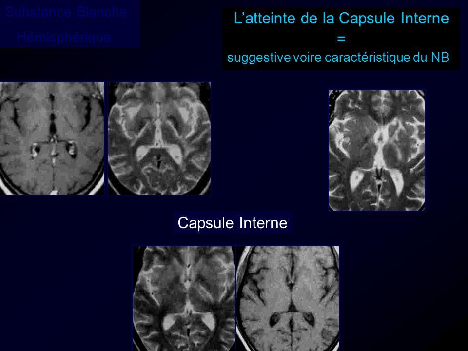 Capsule Interne Latteinte de la Capsule Interne = suggestive voire caractéristique du NB Substance Blanche Hémisphérique