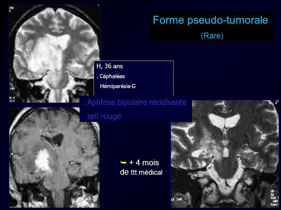+ 4 mois de ttt médical Forme pseudo-tumorale (Rare) H, 36 ans. Céphalées Hémiparésie G. Aphtose bipolaire récidivante œil rouge