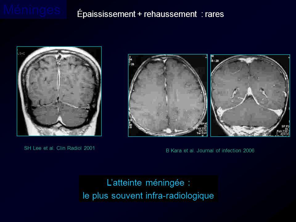 Épaississement + rehaussement : rares Méninges Latteinte méningée : le plus souvent infra-radiologique SH Lee et al. Clin Radiol 2001 B Kara et al. Jo