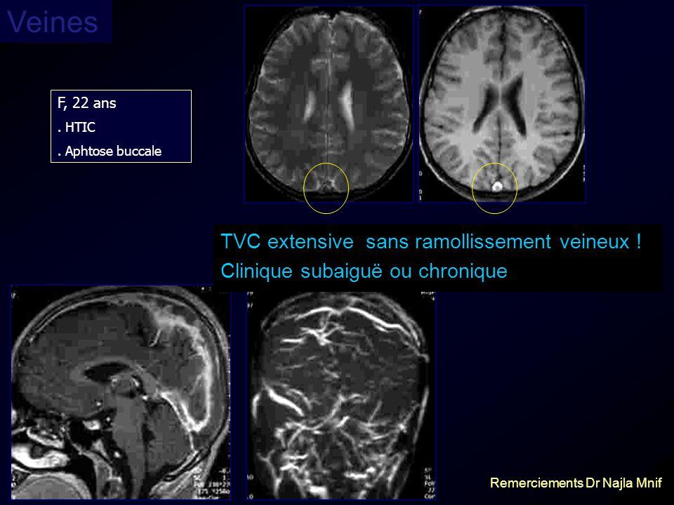 F, 22 ans. HTIC. Aphtose buccale TVC extensive sans ramollissement veineux ! Clinique subaiguë ou chronique Remerciements Dr Najla Mnif