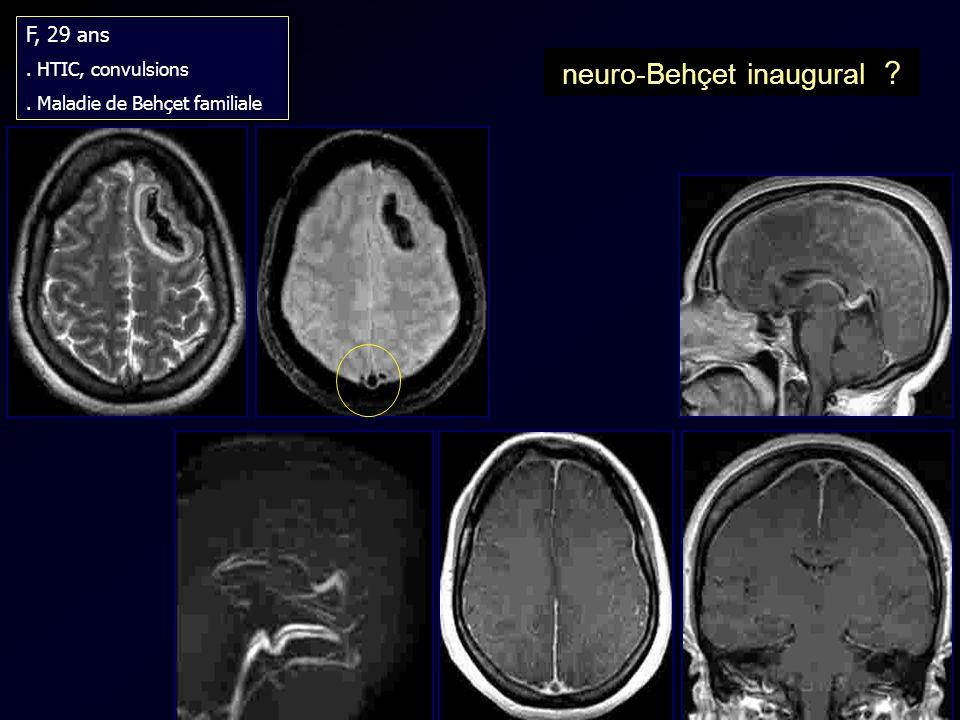 F, 29 ans. HTIC, convulsions. Maladie de Behçet familiale neuro-Behçet inaugural ?