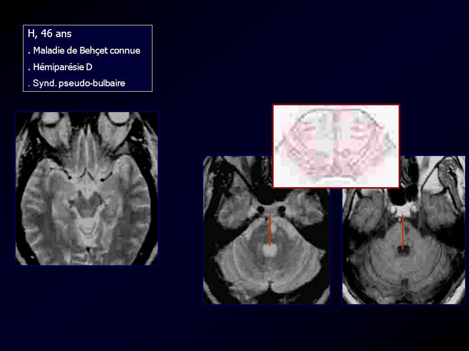 H, 46 ans. Maladie de Behçet connue. Hémiparésie D. Synd. pseudo-bulbaire