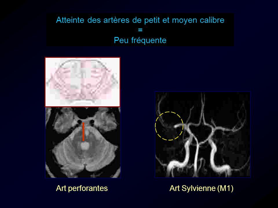 Atteinte des artères de petit et moyen calibre = Peu fréquente Art perforantesArt Sylvienne (M1)