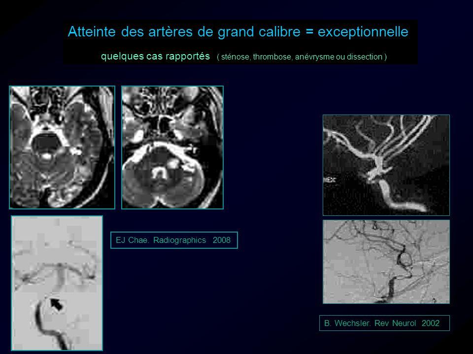 EJ Chae. Radiographics 2008 Atteinte des artères de grand calibre = exceptionnelle quelques cas rapportés ( sténose, thrombose, anévrysme ou dissectio