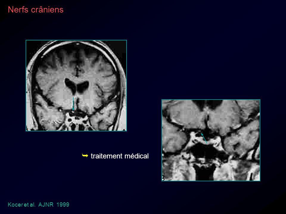 Kocer et al. AJNR 1999 Nerfs crâniens traitement médical