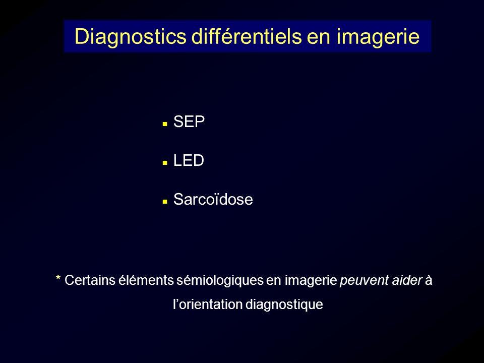 SEP LED Sarcoïdose Diagnostics différentiels en imagerie * Certains éléments sémiologiques en imagerie peuvent aider à lorientation diagnostique