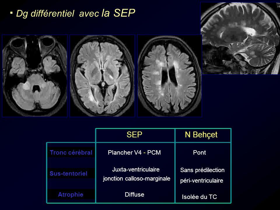 Dg différentiel avec la SEP Atrophie SEPN Behçet Tronc cérébralPlancher V4 - PCMPont Juxta-ventriculaire jonction calloso-marginale Sus-tentoriel Diff