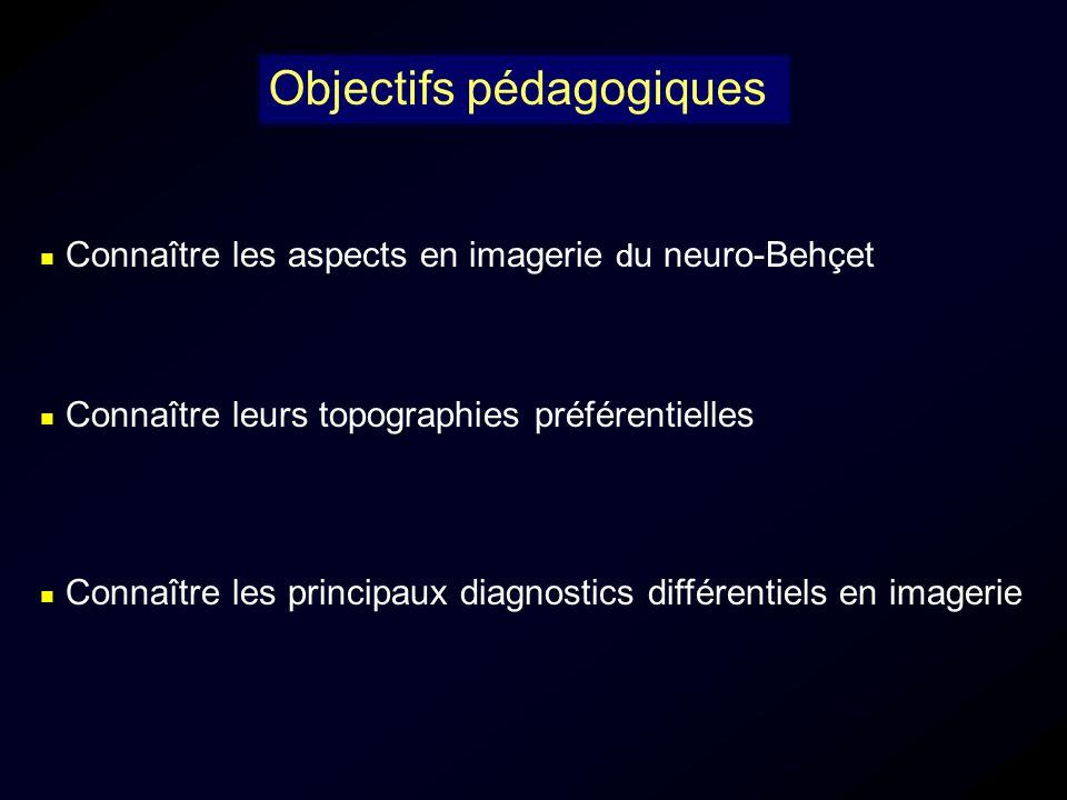 Connaître les aspects en imagerie d u neuro-Behçet Objectifs pédagogiques Connaître les principaux diagnostics différentiels en imagerie Connaître leu