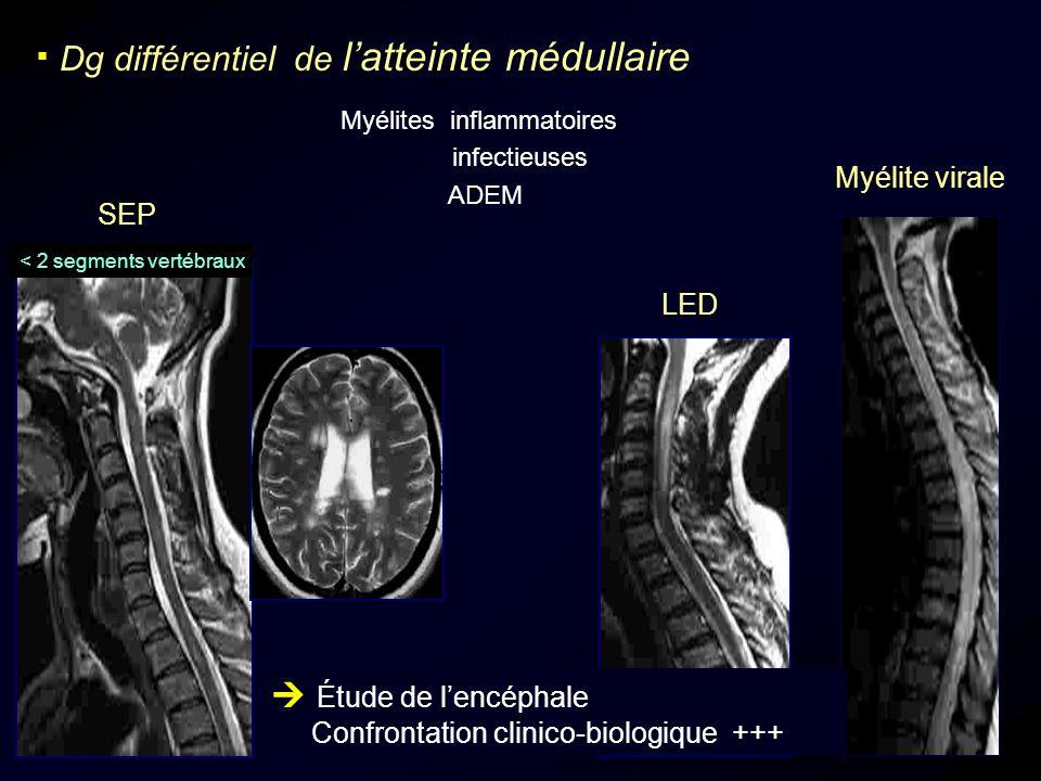 Dg différentiel de latteinte médullaire Myélites inflammatoires infectieuses ADEM LED SEP Myélite virale Étude de lencéphale Confrontation clinico-bio