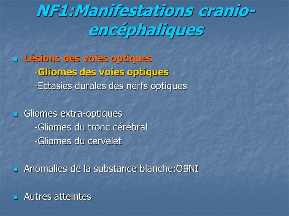 NF1:Manifestations cranio- encéphaliques Lésions des voies optiques Lésions des voies optiques -Gliomes des voies optiques -Gliomes des voies optiques