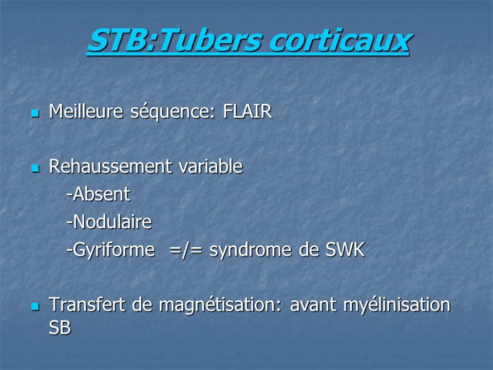 STB:Tubers corticaux Meilleure séquence: FLAIR Meilleure séquence: FLAIR Rehaussement variable Rehaussement variable -Absent -Absent -Nodulaire -Nodulaire -Gyriforme =/= syndrome de SWK -Gyriforme =/= syndrome de SWK Transfert de magnétisation: avant myélinisation SB Transfert de magnétisation: avant myélinisation SB