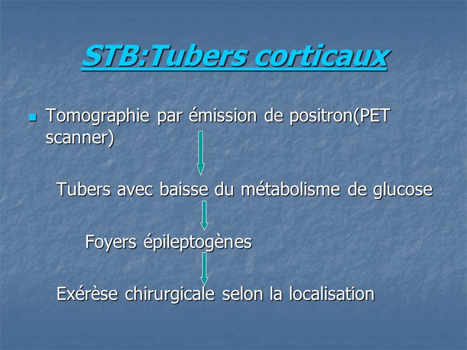 STB:Tubers corticaux Tomographie par émission de positron(PET scanner) Tomographie par émission de positron(PET scanner) Tubers avec baisse du métabol