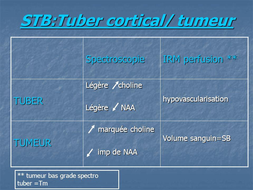 STB:Tuber cortical/ tumeur Spectroscopie IRM perfusion ** TUBER Légère choline Légère NAA hypovascularisation TUMEUR marquée choline marquée choline i