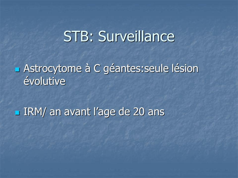 STB: Surveillance Astrocytome à C géantes:seule lésion évolutive Astrocytome à C géantes:seule lésion évolutive IRM/ an avant lage de 20 ans IRM/ an avant lage de 20 ans