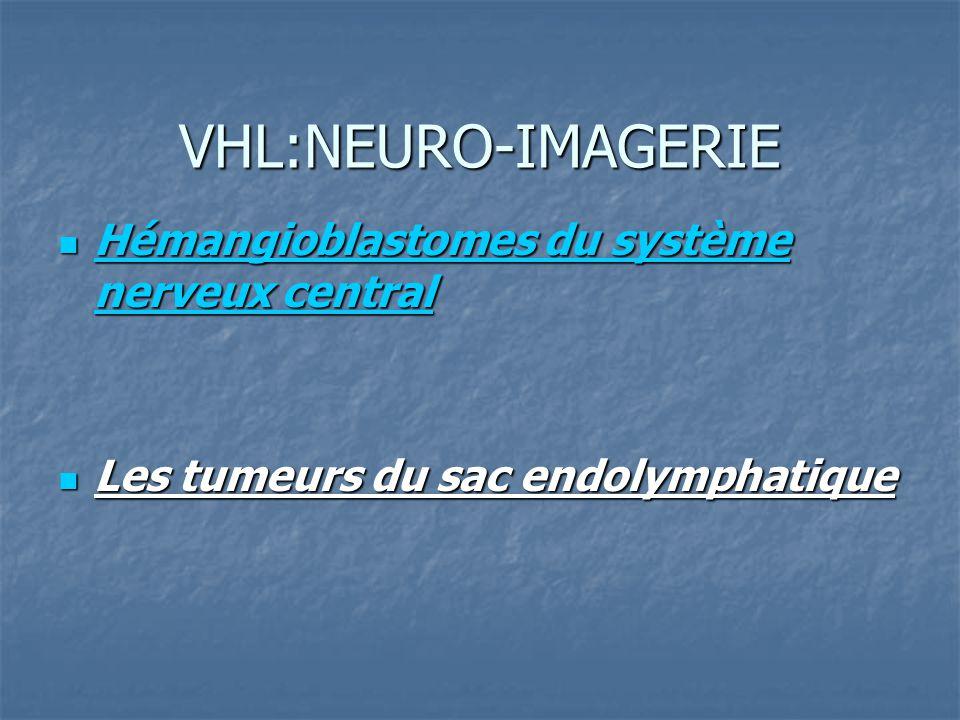 VHL:NEURO-IMAGERIE Hémangioblastomes du système nerveux central Hémangioblastomes du système nerveux central Les tumeurs du sac endolymphatique Les tumeurs du sac endolymphatique