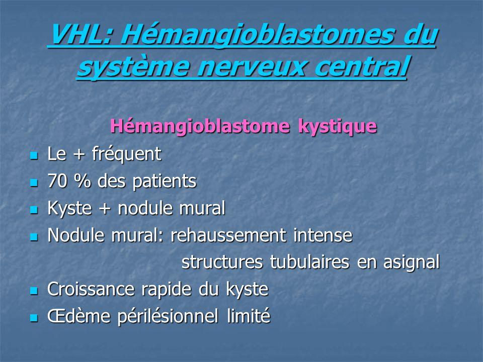 VHL: Hémangioblastomes du système nerveux central Hémangioblastome kystique Hémangioblastome kystique Le + fréquent Le + fréquent 70 % des patients 70