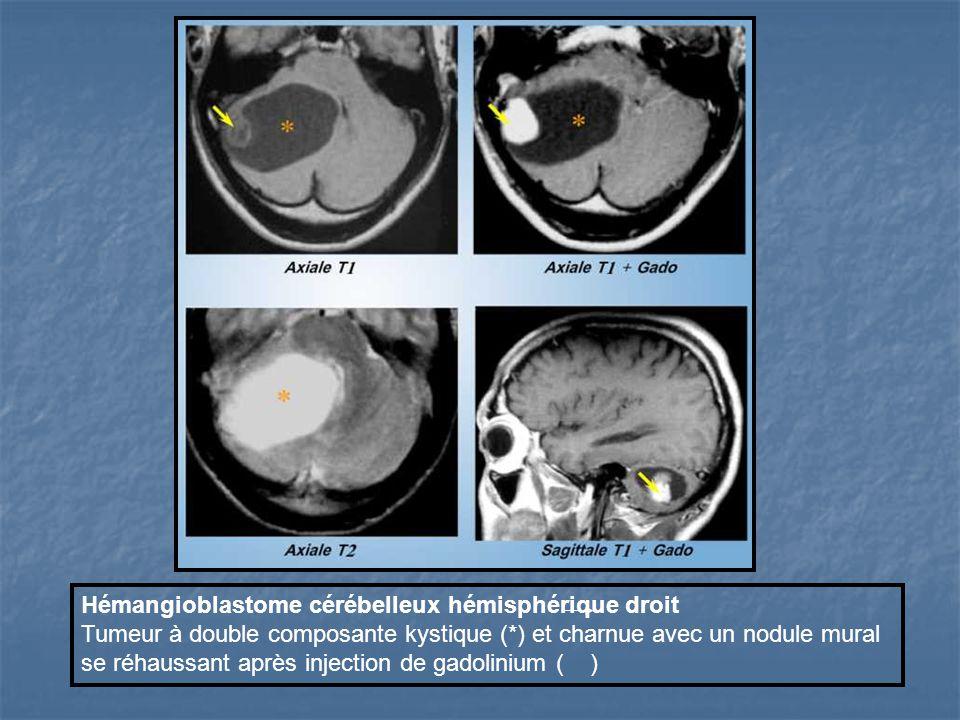 Hémangioblastome cérébelleux hémisphérique droit Tumeur à double composante kystique (*) et charnue avec un nodule mural se réhaussant après injection de gadolinium ( )