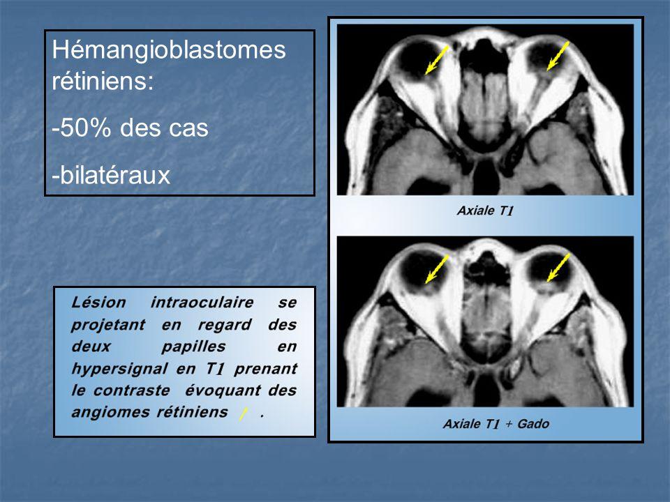 Hémangioblastomes rétiniens: -50% des cas -bilatéraux