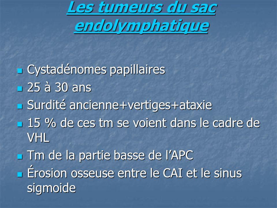 Les tumeurs du sac endolymphatique Cystadénomes papillaires Cystadénomes papillaires 25 à 30 ans 25 à 30 ans Surdité ancienne+vertiges+ataxie Surdité ancienne+vertiges+ataxie 15 % de ces tm se voient dans le cadre de VHL 15 % de ces tm se voient dans le cadre de VHL Tm de la partie basse de lAPC Tm de la partie basse de lAPC Érosion osseuse entre le CAI et le sinus sigmoide Érosion osseuse entre le CAI et le sinus sigmoide