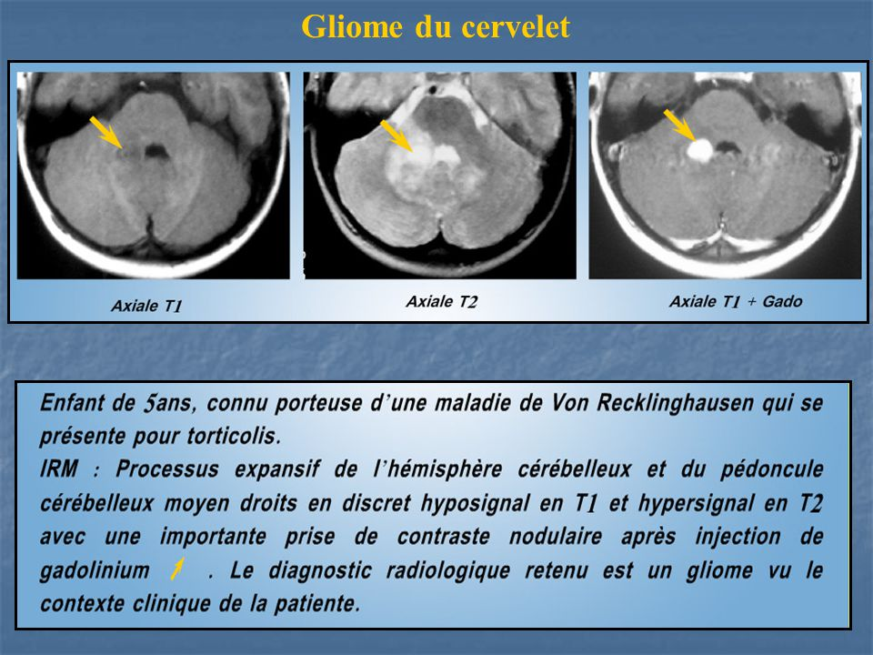 Gliome du cervelet