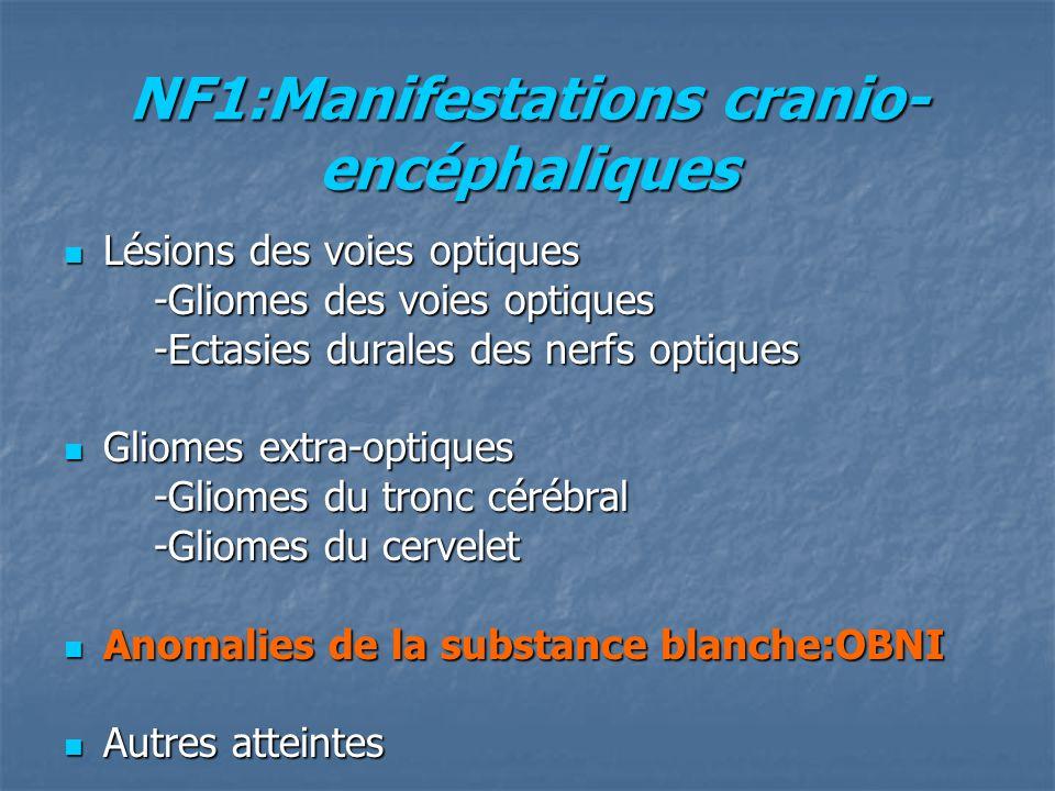 NF1:Manifestations cranio- encéphaliques Lésions des voies optiques Lésions des voies optiques -Gliomes des voies optiques -Gliomes des voies optiques -Ectasies durales des nerfs optiques -Ectasies durales des nerfs optiques Gliomes extra-optiques Gliomes extra-optiques -Gliomes du tronc cérébral -Gliomes du tronc cérébral -Gliomes du cervelet -Gliomes du cervelet Anomalies de la substance blanche:OBNI Anomalies de la substance blanche:OBNI Autres atteintes Autres atteintes