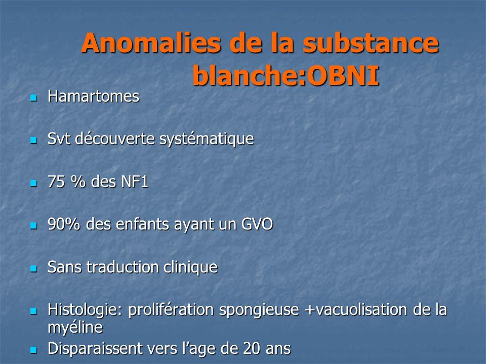 Hamartomes Hamartomes Svt découverte systématique Svt découverte systématique 75 % des NF1 75 % des NF1 90% des enfants ayant un GVO 90% des enfants a
